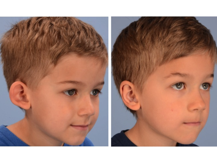 The preoperative image on the left side of this figure shows loss of the finer features of the ear because of the abnormal forward projection and cupping of the ear. The postoperative image on the right demonstrates restoration of the normal dimensions, projection and delicate features of the ear with a natural appearance.