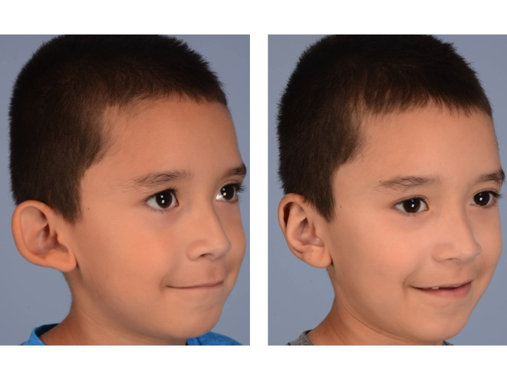 This figure shows the same boy before and after otoplasty in which suture techniques are used to create normal contours and projection in the ear. These techniques are possible because a normal amount of skin and cartilage are present in the ear.