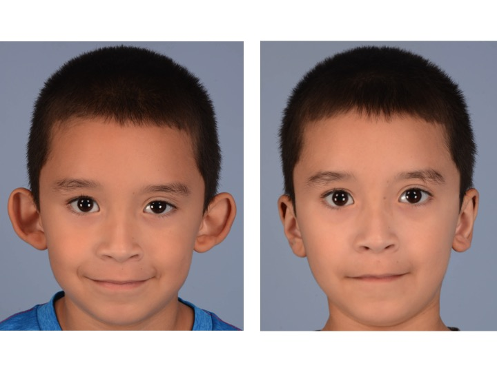 """This 6 year old boy had prominent ears that """"stuck out too far"""" from the head and lacked the normal contours and features of an ear. However he had a normal amount of skin and cartilage."""