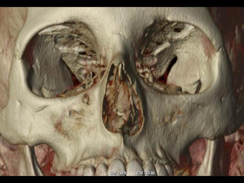 Dr Derderian 3D CT Example Deviated Septum