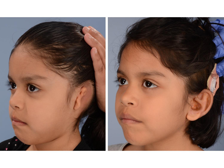 Ear Reconstruction -