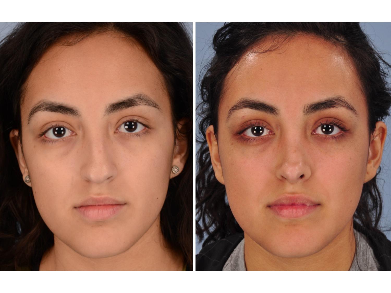 Rhinoplasty Nose Job Dallas Pediatric Plastic Surgeon Craniofacial Surgeon Cleft Lip And Palate Craniosynostosis Rhinoplasty Microtia