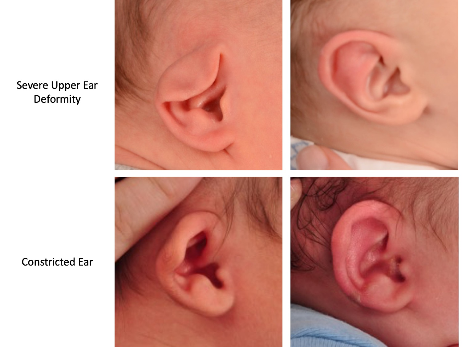 drderderian.com Ear Mold Before and After Figure 2