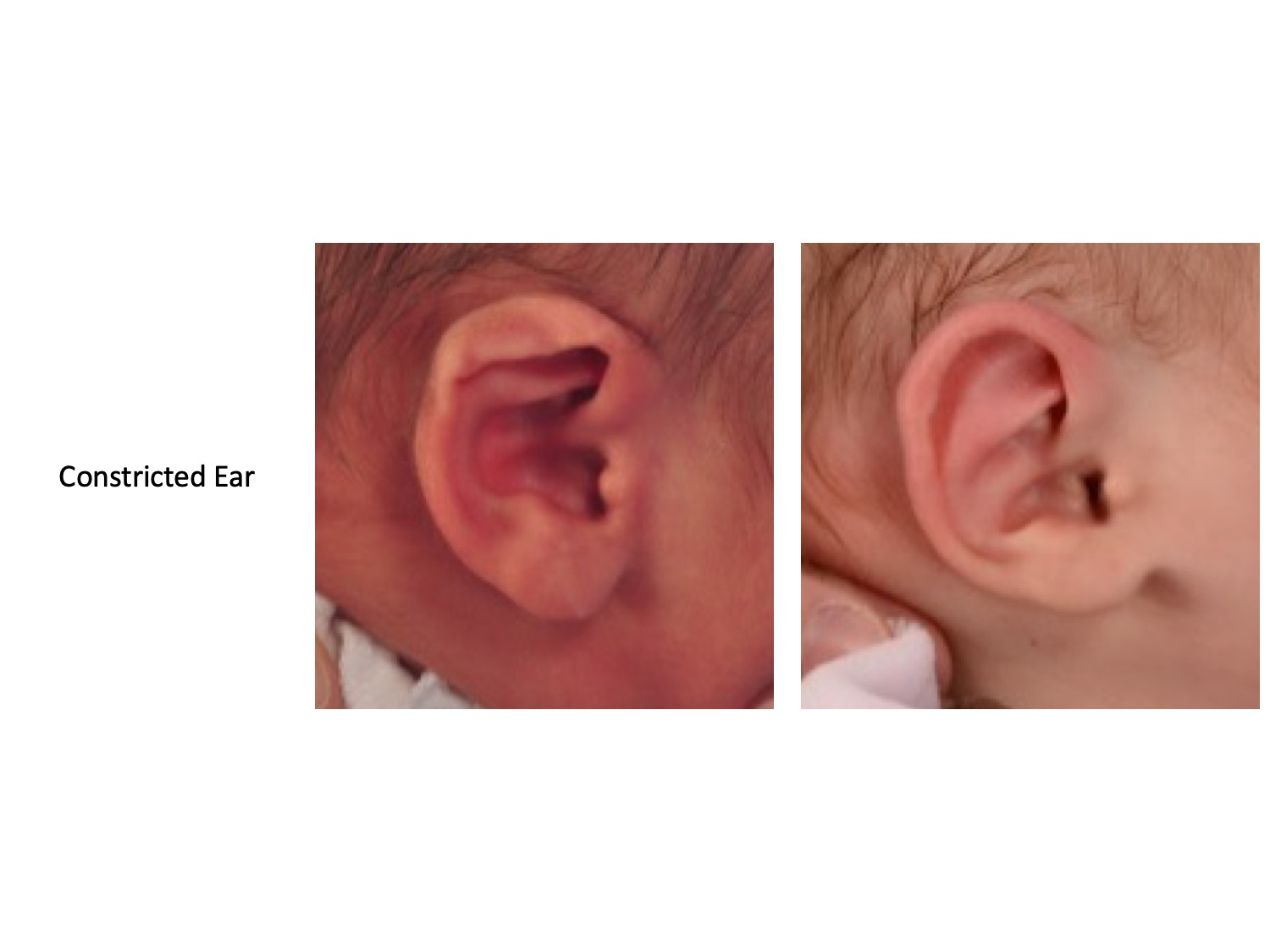 drderderian.com Ear Mold Before and After Figure 3