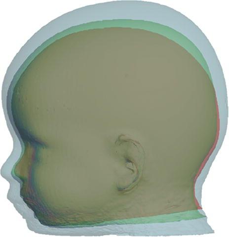 3D Changes after sagittal strip drderderian.com.jpg