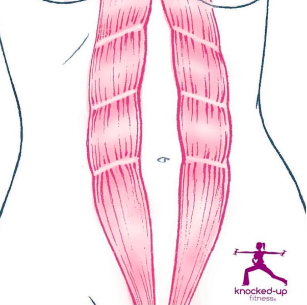Diagram of diastasis recti - mine wasn't this severe at all, but this shows kind of what happens with abdominal separation!