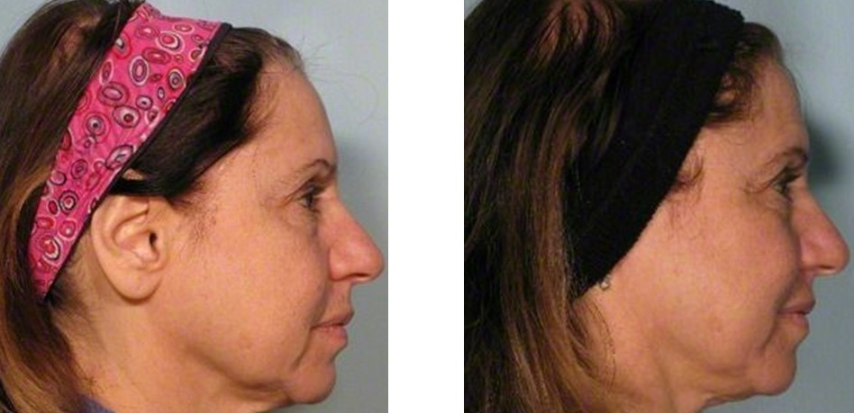 64 year old patient had one treatment of Ultherapy to her lower face and neck.