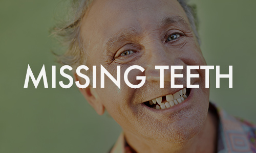 Missing-teeth_small.jpg