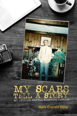 """Purchase """"My Scars Tell A Story"""" here."""