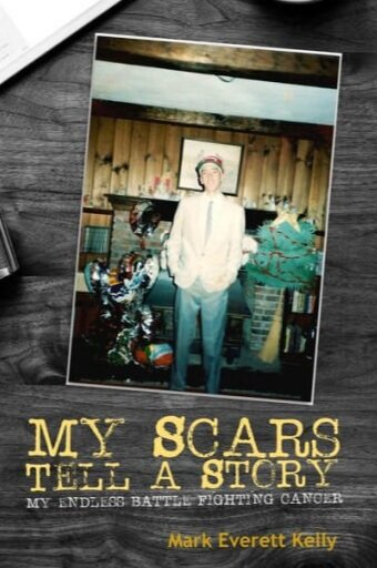 "Purchase ""My Scars Tell A Story"" by clicking on photo."