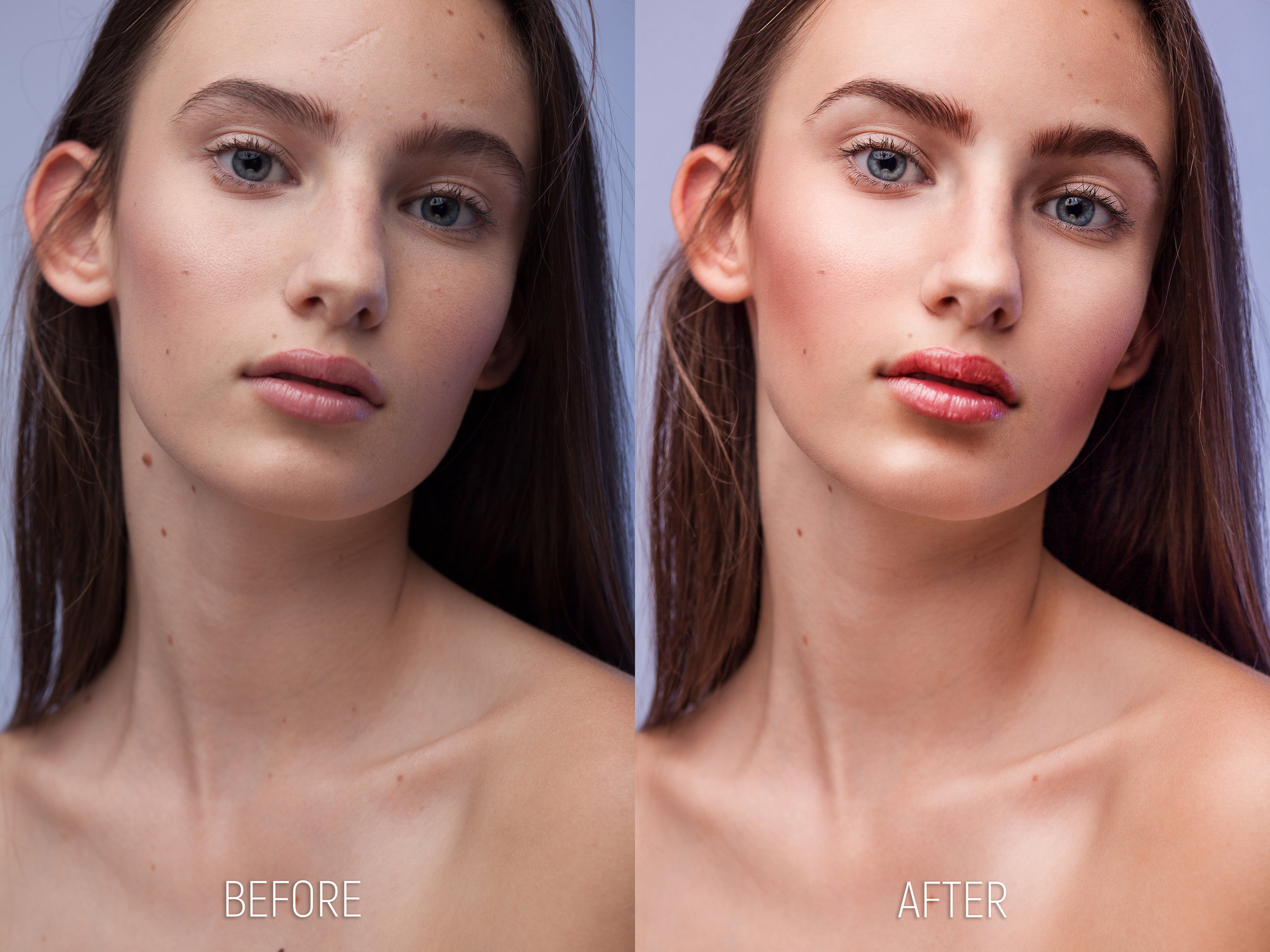Brightness, contrast and color correction. Scar, hair patches and some birthmarks removed, eyebrows thinned. Used Liquify to make ears smaller, the nasal bone more narrow, fuller lips and narrow the jawline. Increase brightness of eyes, added blue and green to saturate and make the irides pop-up a bit more, made the eyelashes thicker and fuller by making them darker. Changed lip color and saturation to give the lips more of a glossy look. Matched overall skin color (frequency separation), used dodge and burn to give the portrait more volume and contrast, patched other imperfections and added sharpness on a few facial features using High Pass filter and masks.