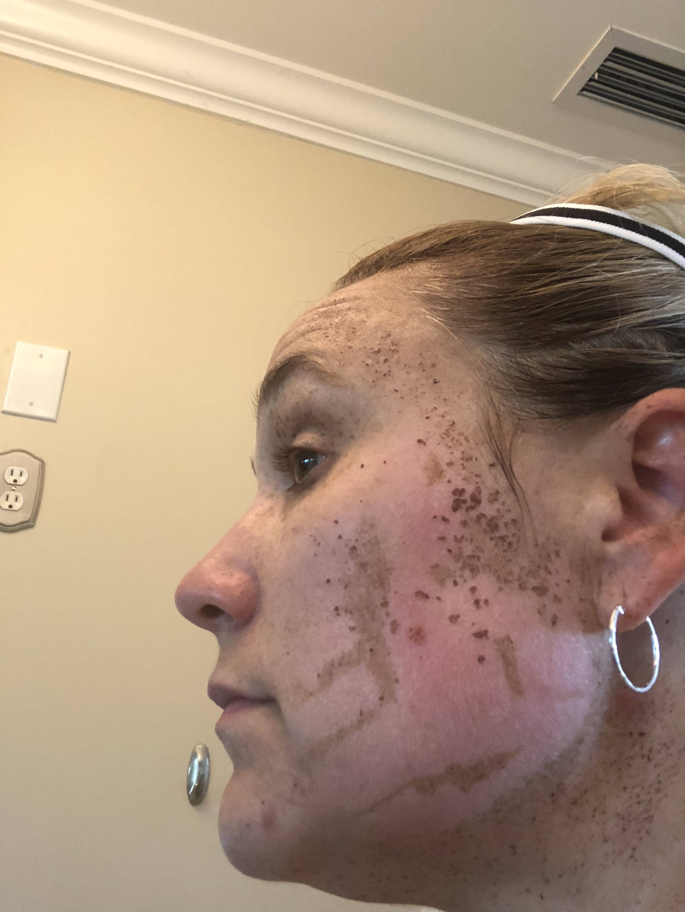 IPL 1 Week Post Treatment