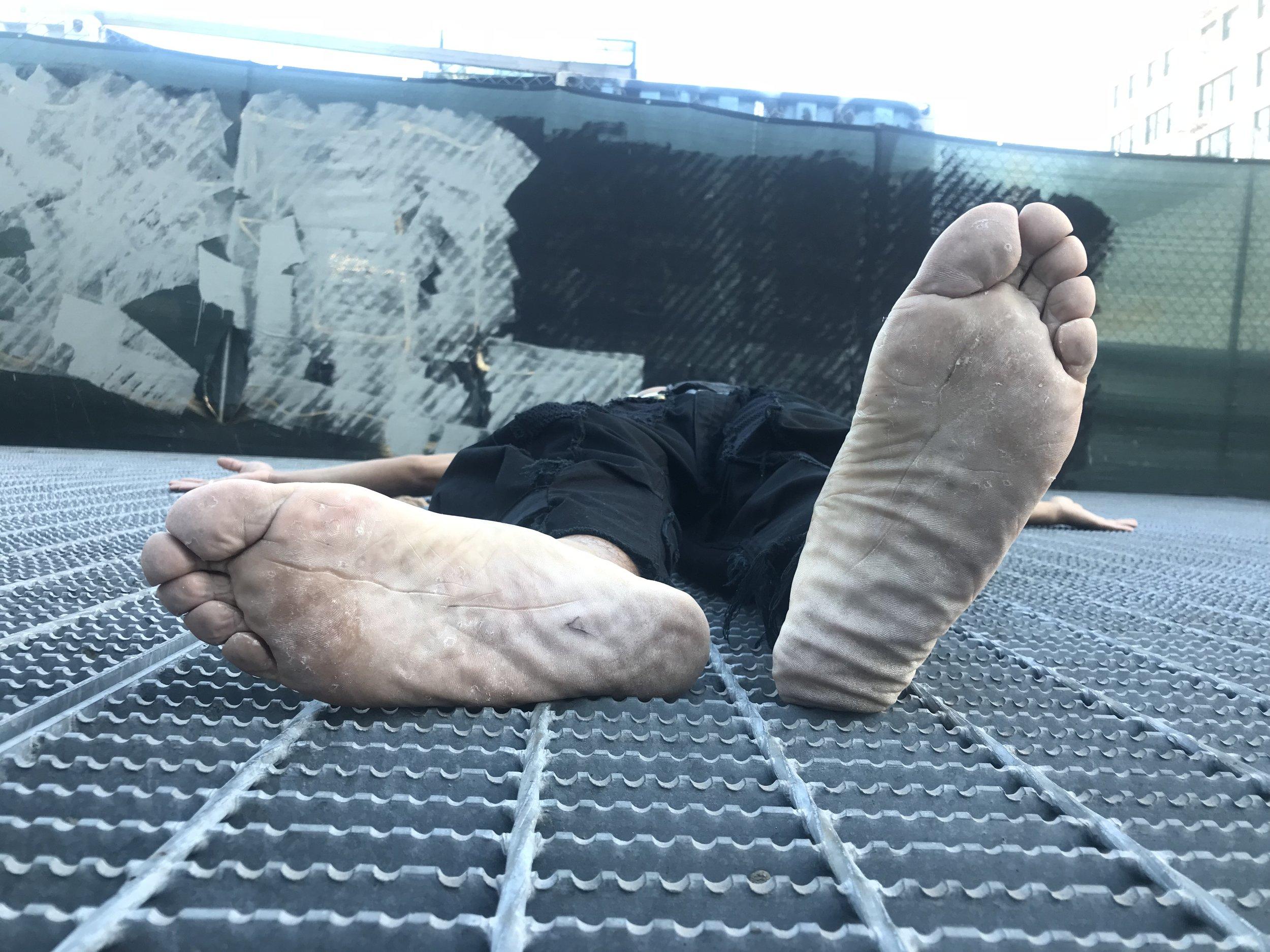 bare feet cracked