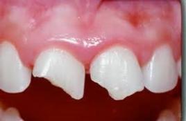 Broken From Teeth