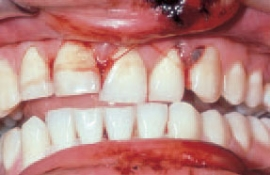 Gum Lip and Tooth Damage