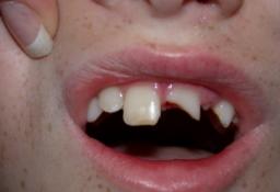Broken From Tooth