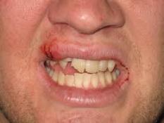 Lip and Teeth Damage