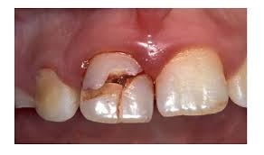 Cracked Front Tooth