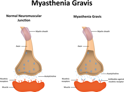 In Myasthenia Gravis, signals from the central nervous system to the muscles are blocked by antibodies.