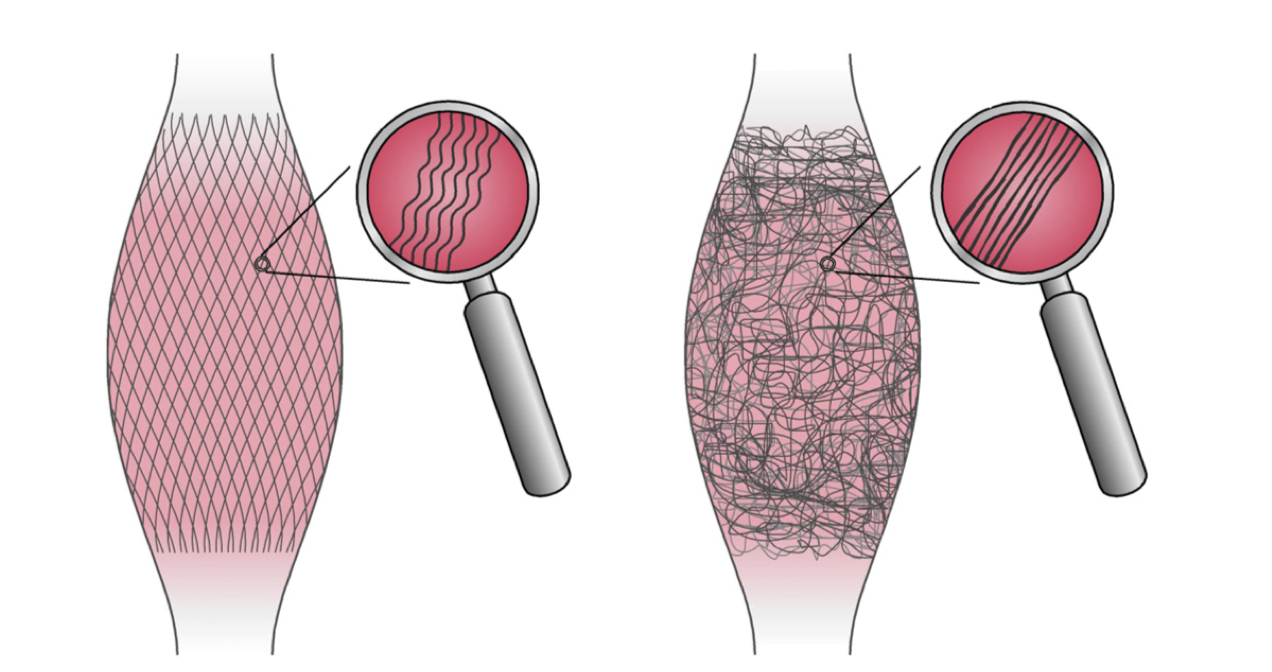 The left picture shows the healthy, lattice, crimp pattern of fascia typical of young people. The right picture shows the typical irregular fascia of older people. Image: Dr. Robert Schleip, Divo Gotta Muller.
