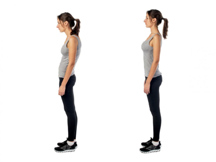 Rounded shoulders often come with other postural issues such as lower back and pelvic misalignment. Photo: cajunchiro.net