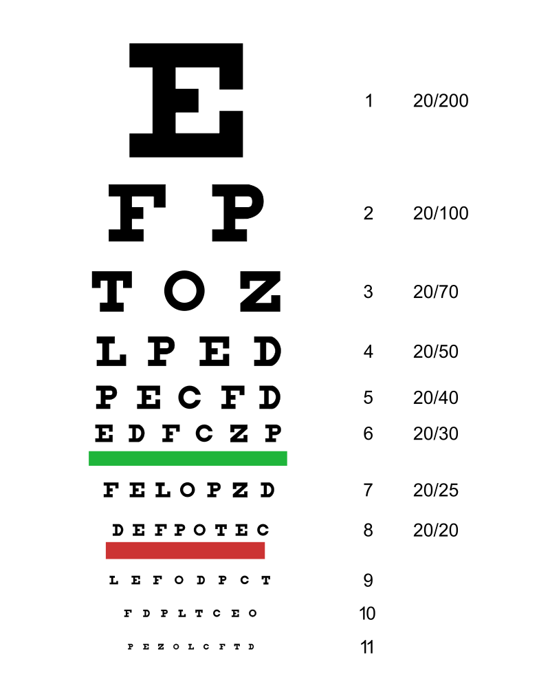 An example of a Snellen Chart
