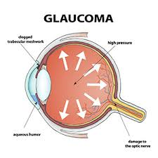 Glaucoma diagram.jpg