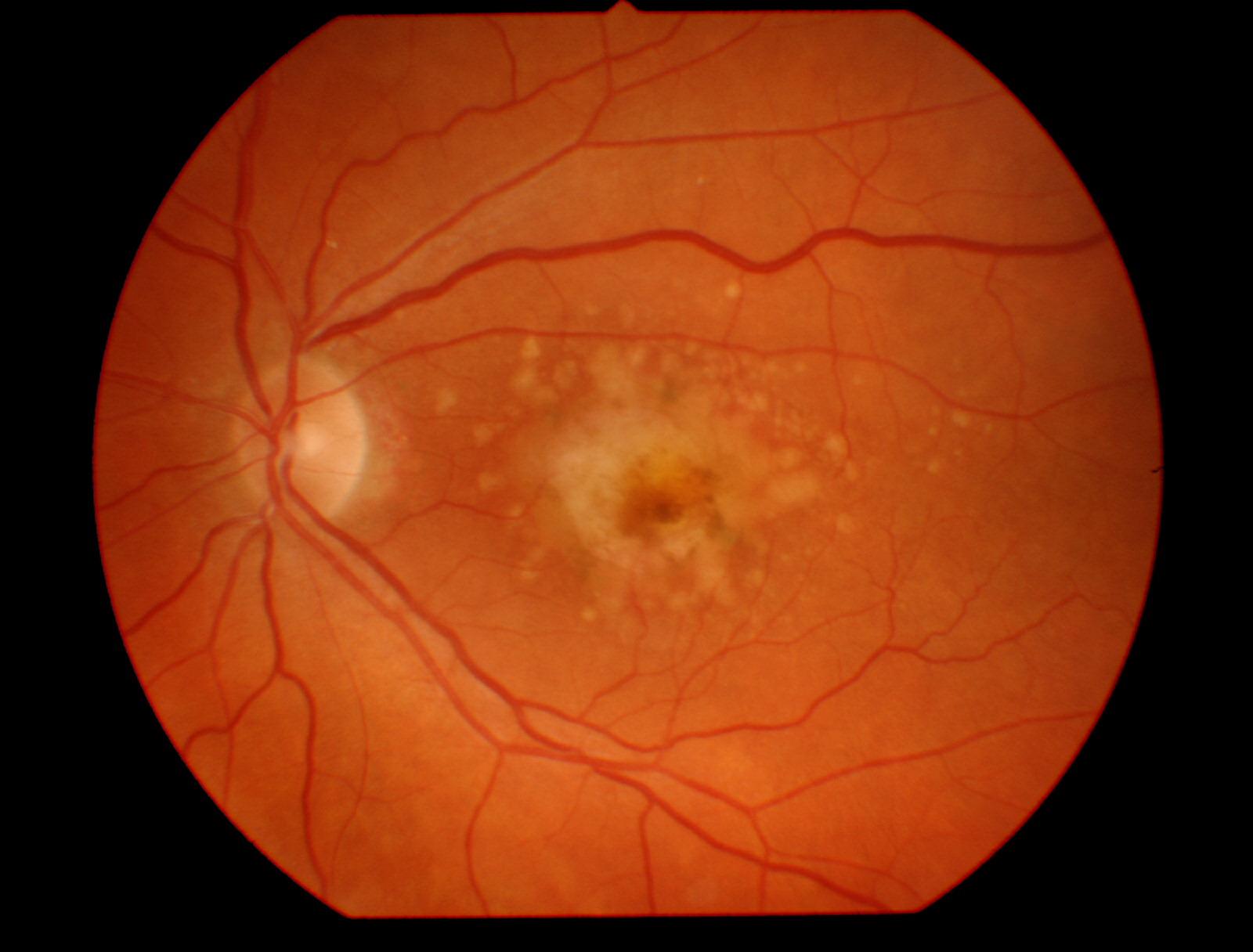 A Digital Retinal Image of Macular Degeneration