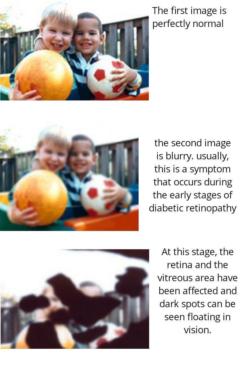 normal vision vs Diabetic retinopathy.jpg
