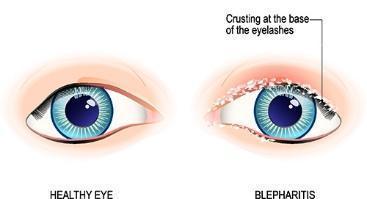 blepharitis healthy comparison.jpg