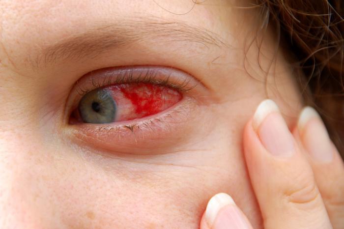 red sclera.jpg
