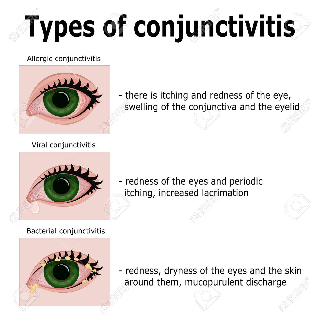 Types of Conjuctivitis.jpg