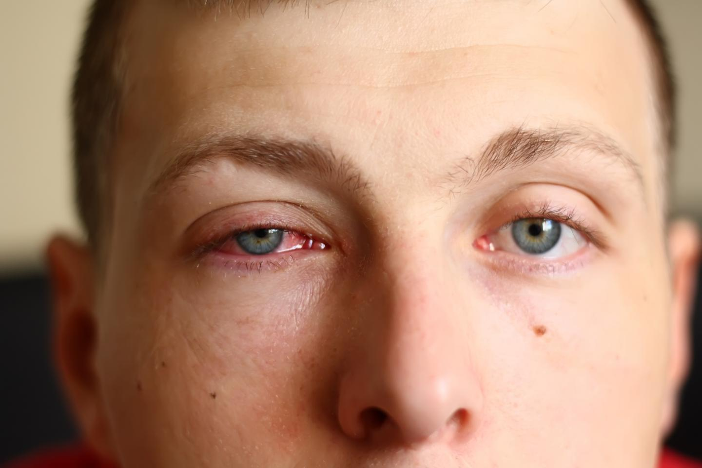 An example of viral conjunctivitis
