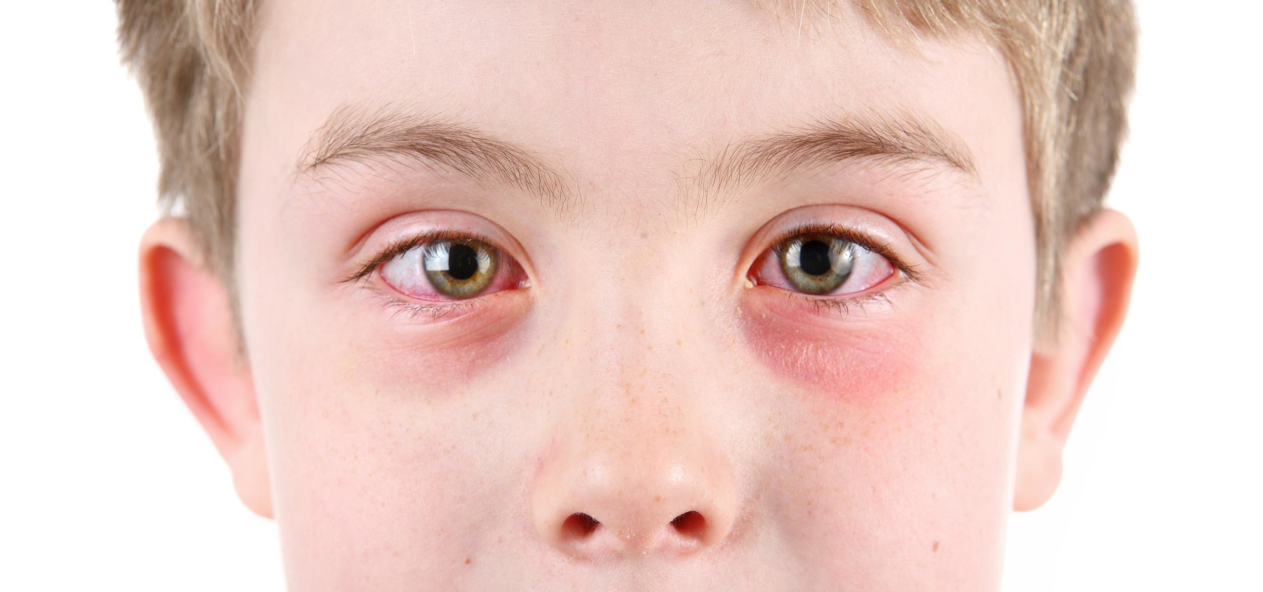 An Example of Allergic conjuctivitis