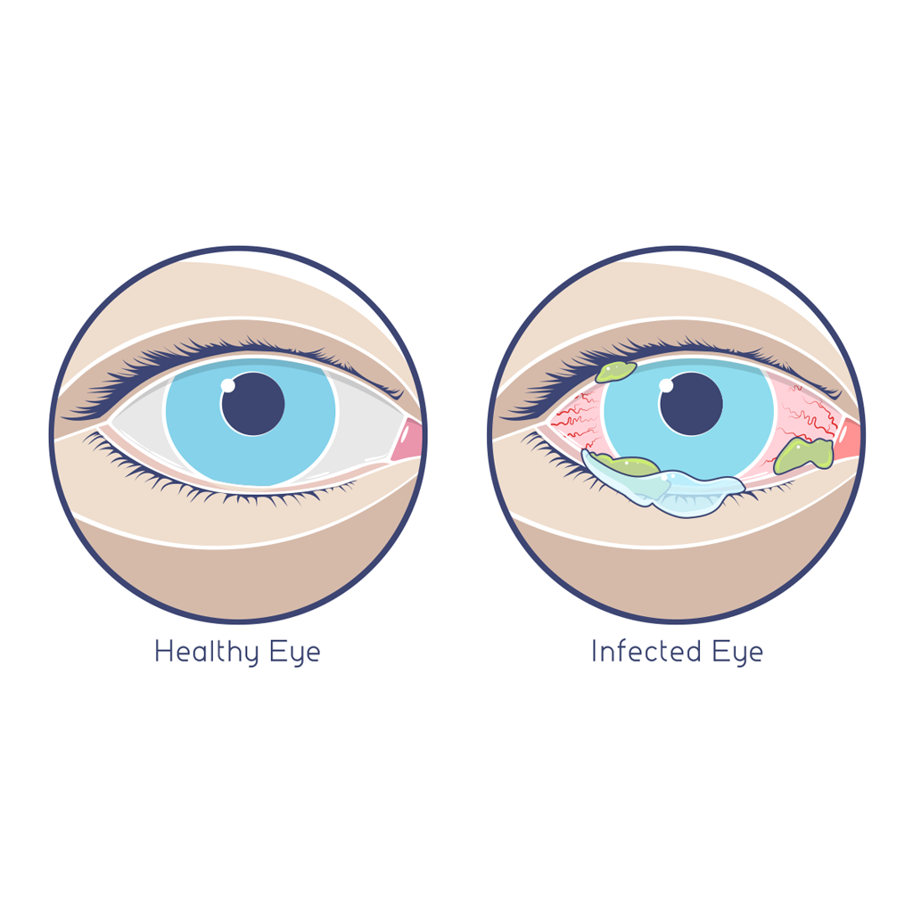 How a normal eye should look like vs. how an infected eye looks like