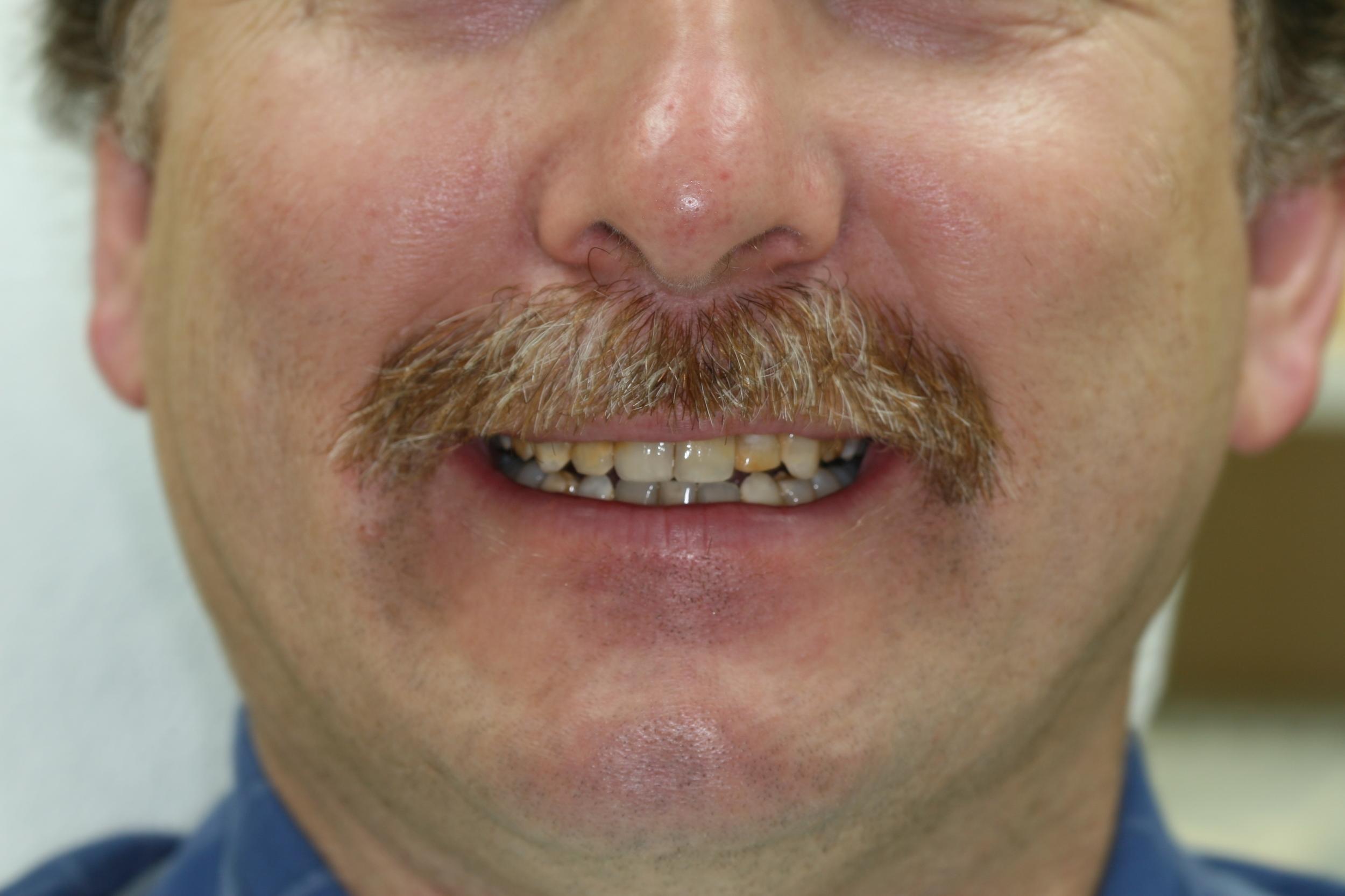 Veneers Before Smile.JPG