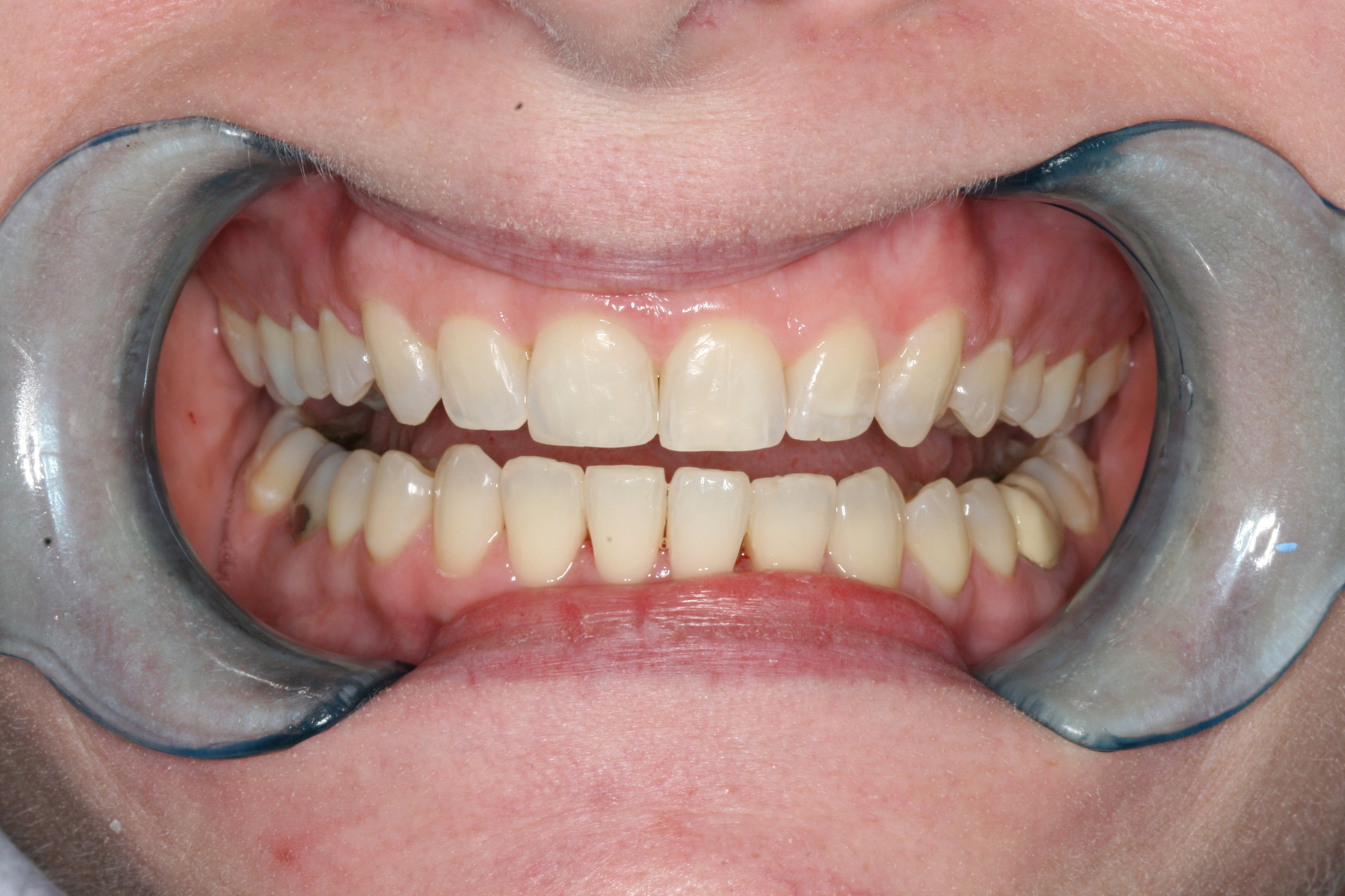 Ortho After Retracted.JPG