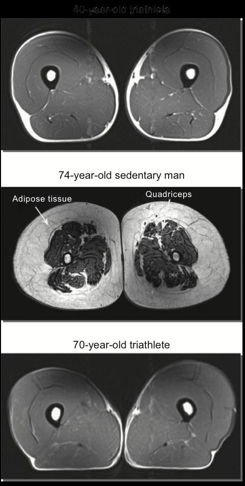 MRI showing thigh muscle mass Wroblewski et al (2011).