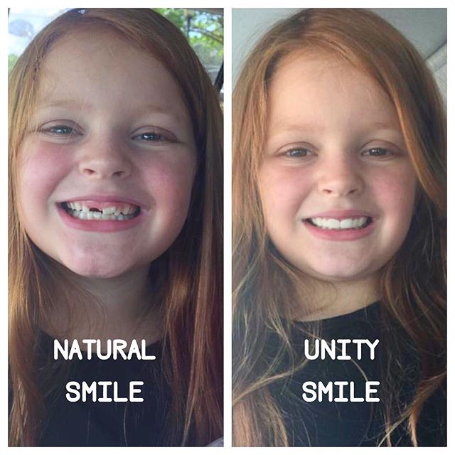 Elle Grace has an adorable natural smile...but when it's time to hit the stage, she sparkles in her Unity Smile. #unitysmile #pageantflipper #pageantgirl #pageantsmile #shareyoursmile