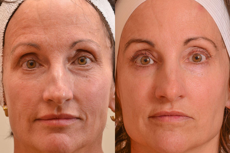 Make-skin-look-younger.jpg