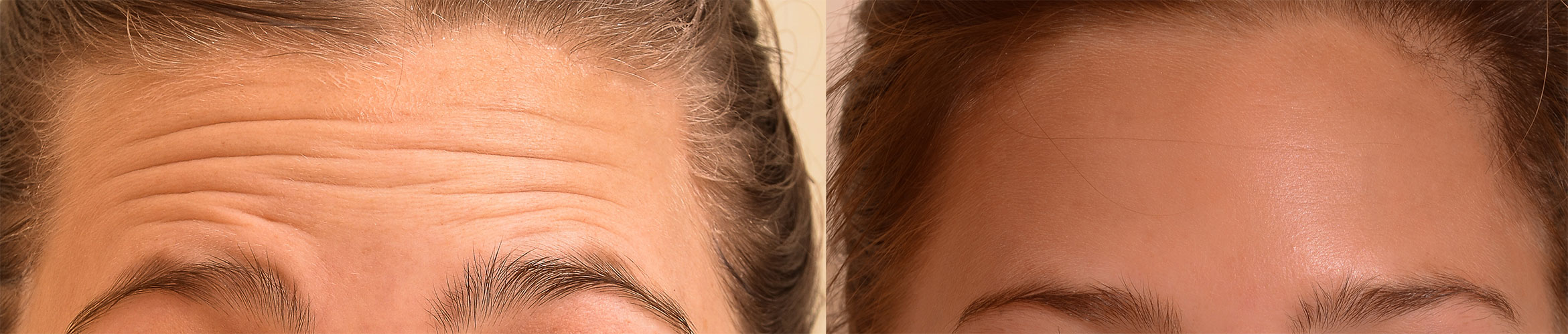 Botox-forehead-before-and-after.jpg