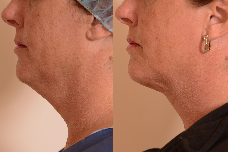 Fix-loose-skin-chin-neck.jpg