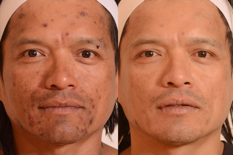 Acne-scar-laser-treatment.jpg