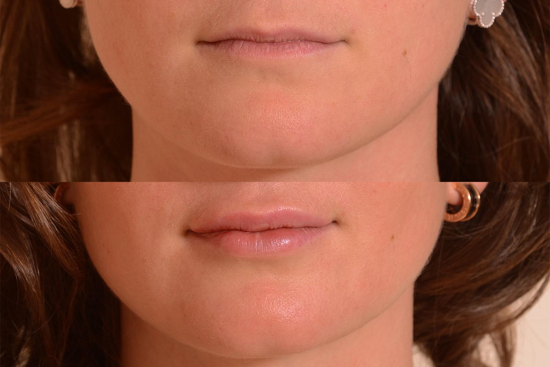 Lip Filler Results.jpg