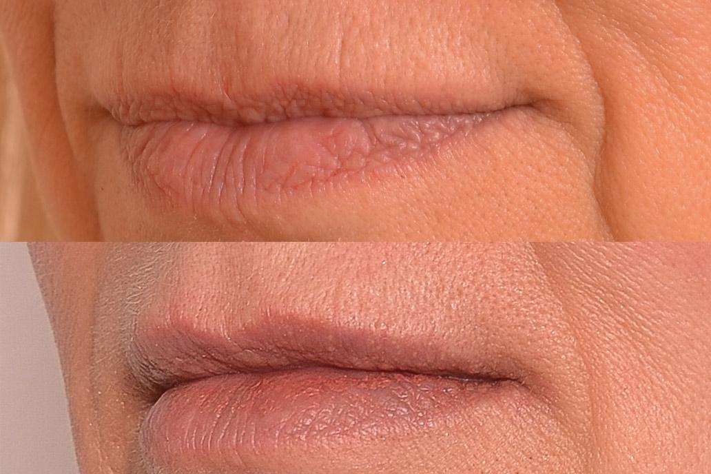 Reshaping lips.jpg