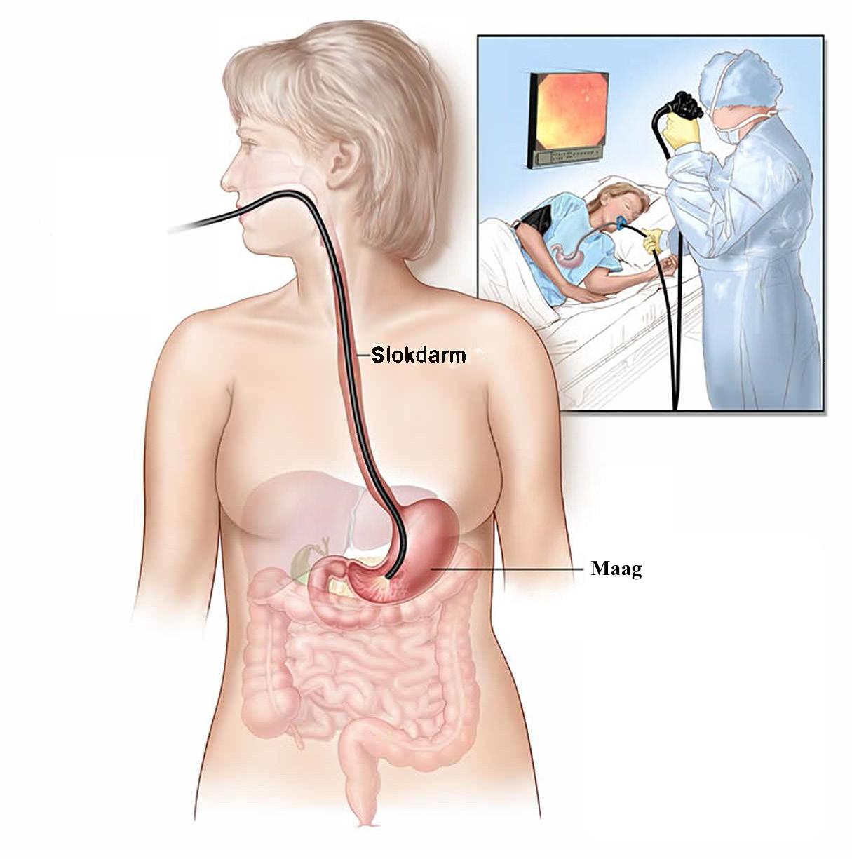 Gastroscopie; kijkonderzoek van de slokdarm en maag