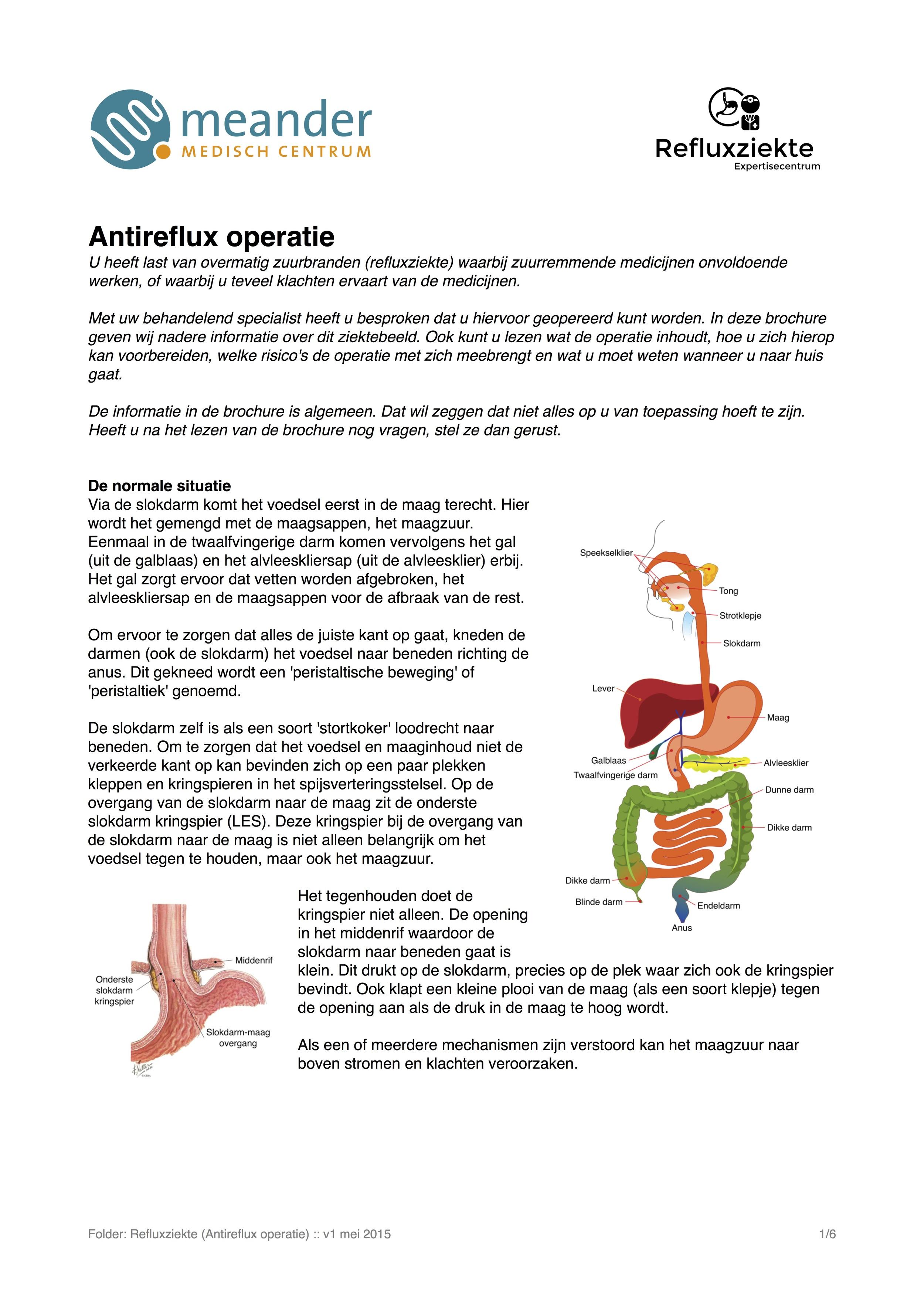 Folder antireflux operatie.jpg