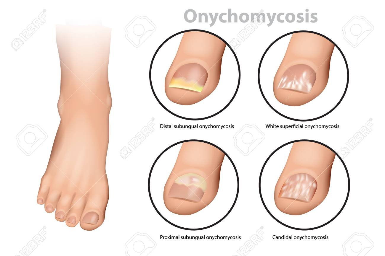 fungal-nail-infection-onychomycosis-or-tinea-unguium-four-classic-types-of-onychomycosis.jpg
