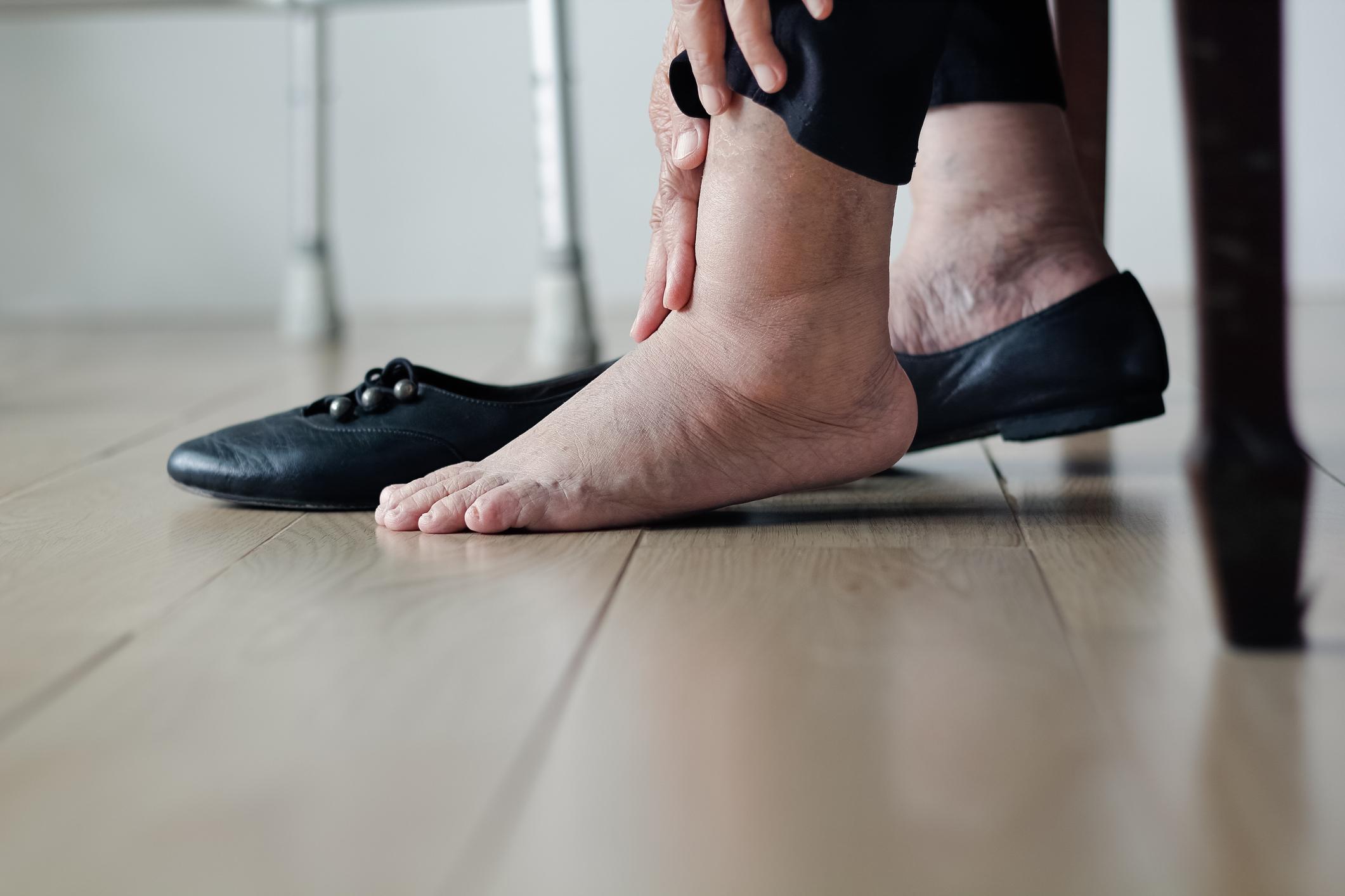 Foot Swelling (Edema)