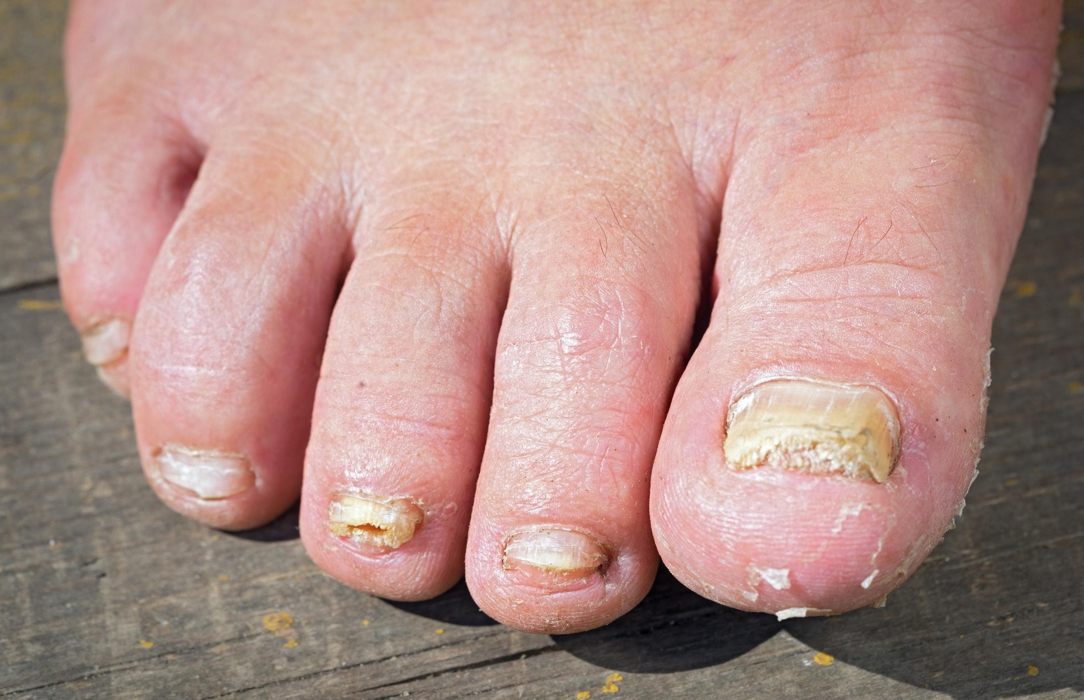 Foot and Toenail Fungus